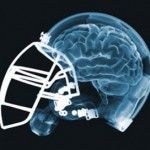 brain-injury-football-340x272-150x150